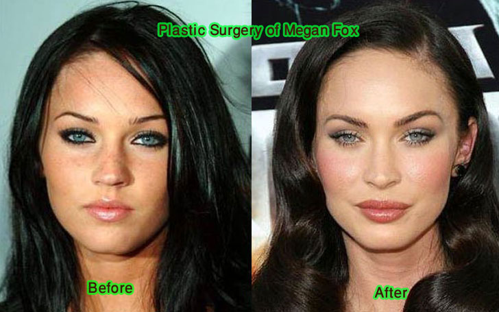 Brian Austin Green's Wife Megan Fox Shocking Transformation After Plastic Surgery: See Pics