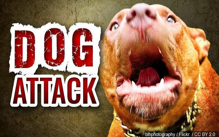 Two Pit Bull Dogs Attack and Killed Owner Outside Animal Hospital in Texas