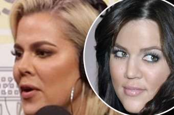 Khloe Kardashian's Nose Job Speculation Making Rounds After After New Podcast Interview