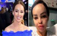 Katie Piper Hospitalized After Suffering a Bad Infection