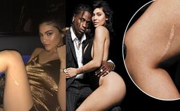 Kylie Jenner's Leg Scar Is the Result of a Childhood Game